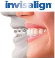 176x187-images-stories-various-invisalign vs. braces